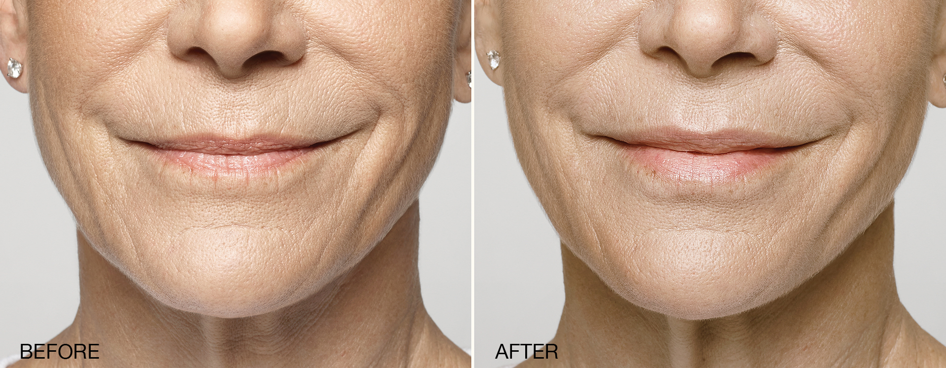 Before & After Restylane Silk