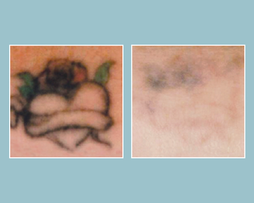 Before & After Tattoo Removal