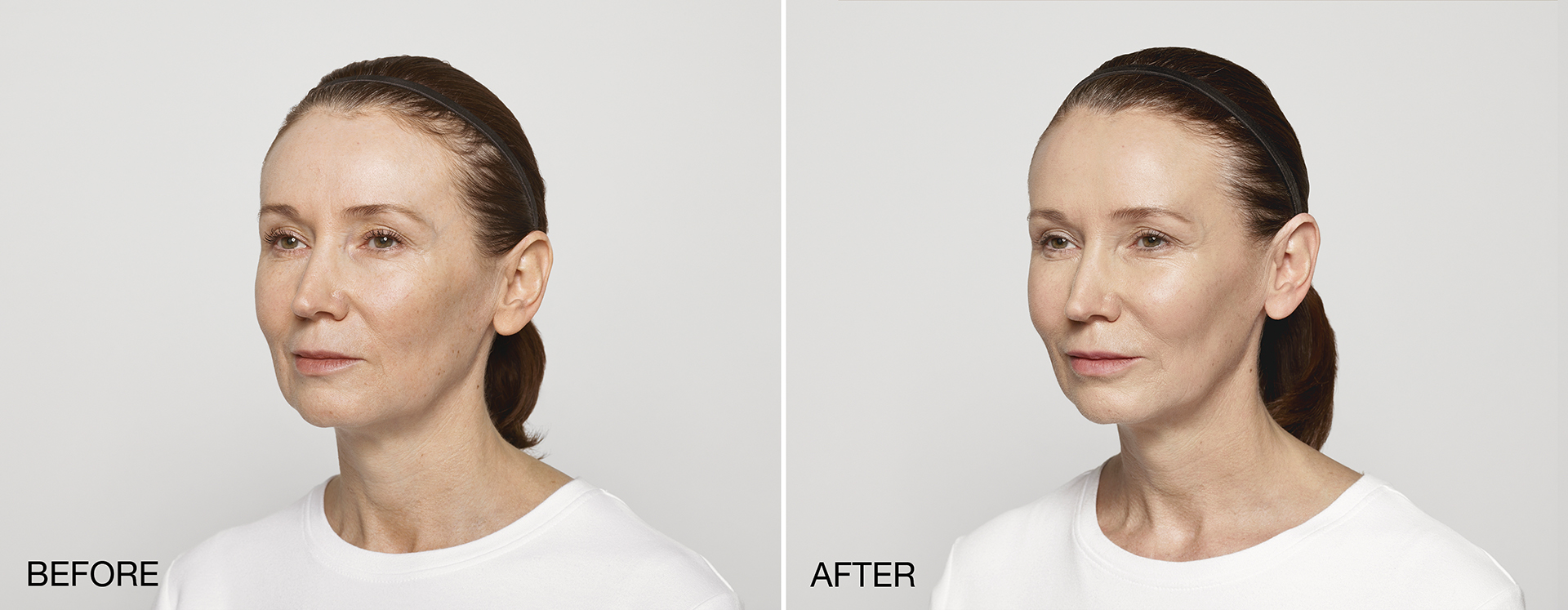 Before & After Restylane Lyft
