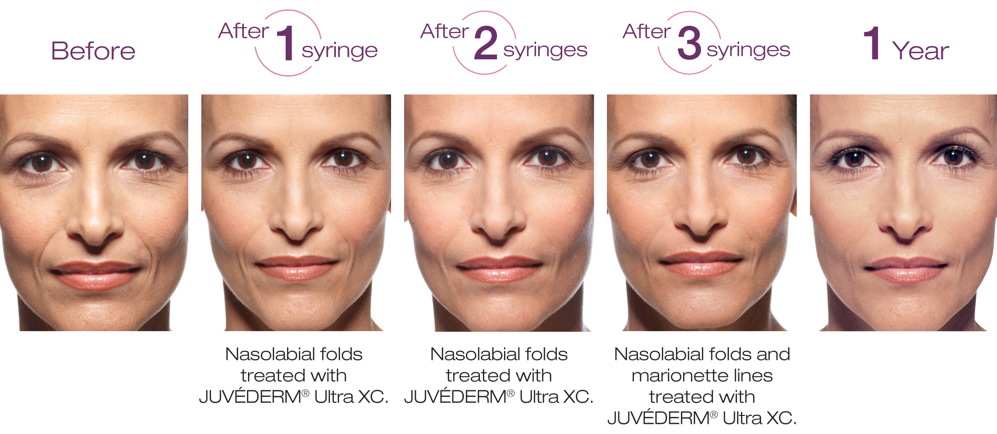 Before & After Juvederm Ultra Plus