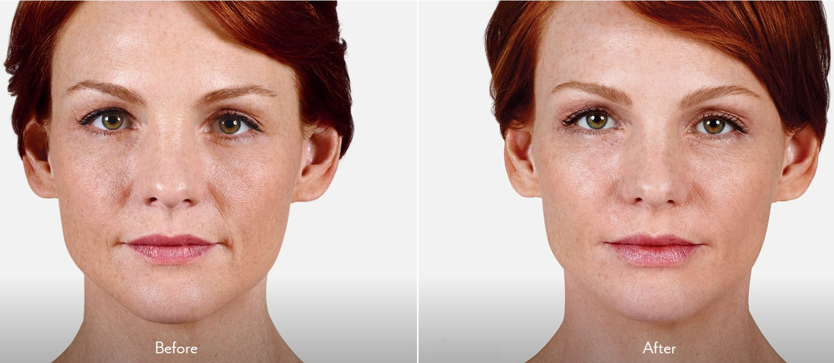 Before & After Juvederm Volbella XC