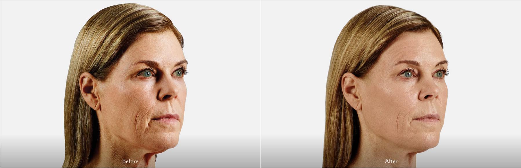 Before & After Juvederm Voluma