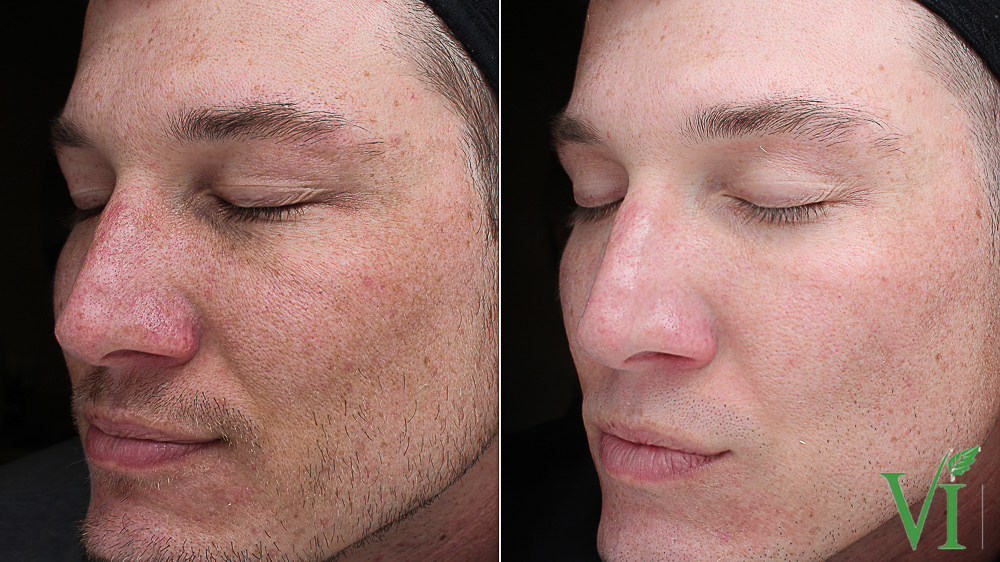 Before & After Vi Peel