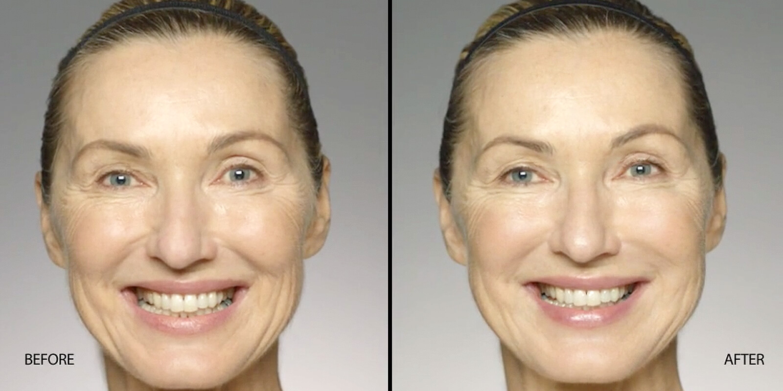 Before & After Restylane Refyne