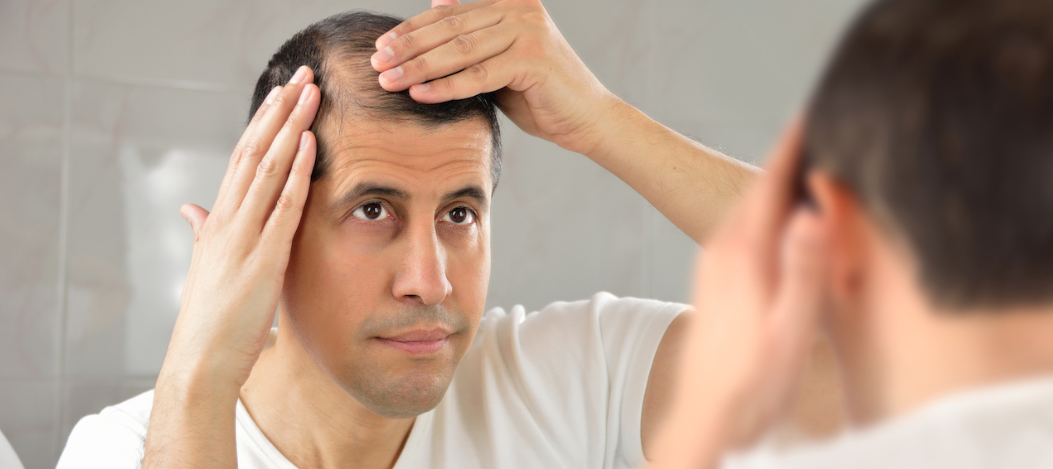 Hair Los Treatment