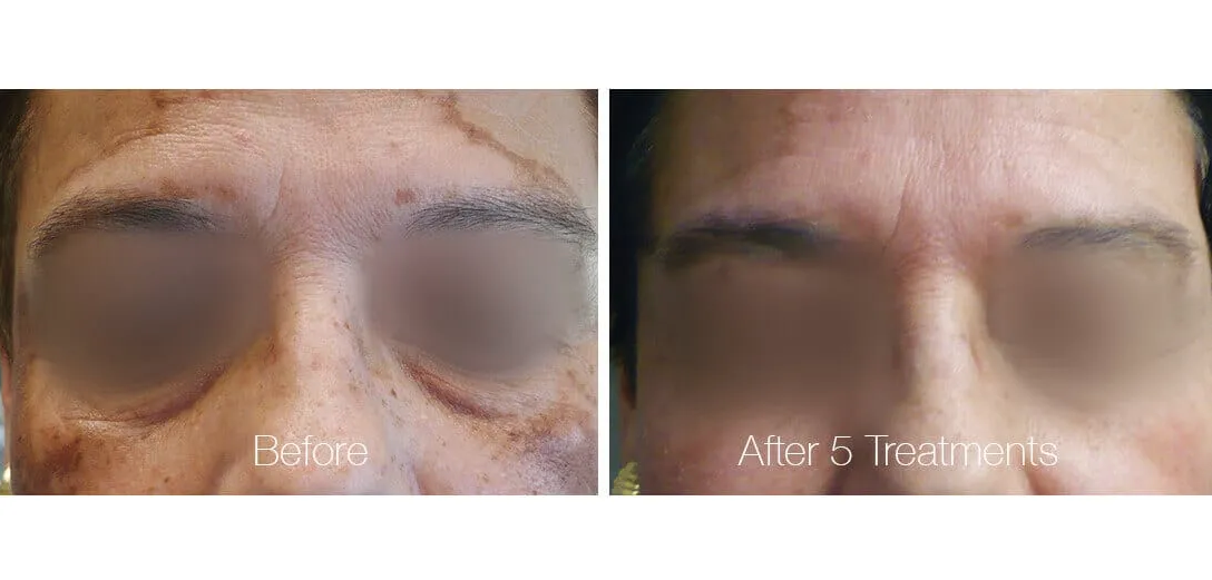Before & After Pigmentation Laser Treatment