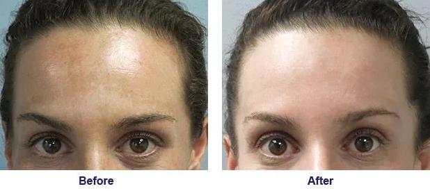 Before & After Skin Rejuvenation