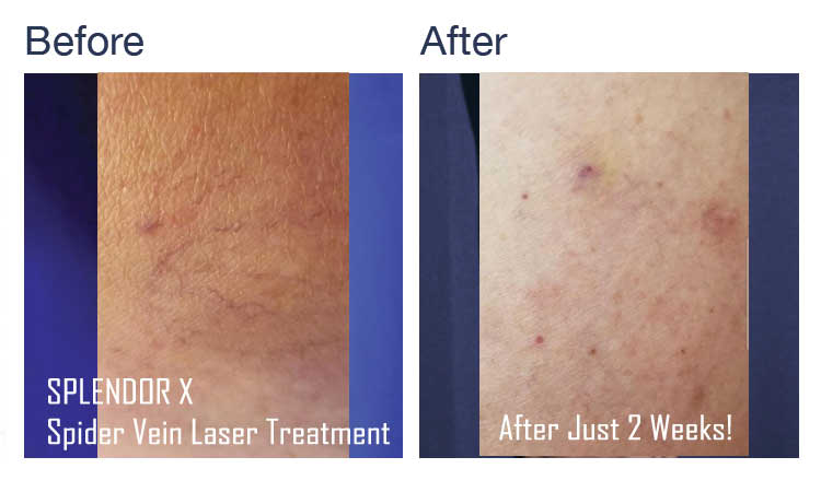 Before & After Vein Removal Treatment