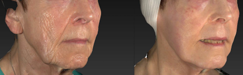 Before & After X|Rated Exosome Facial