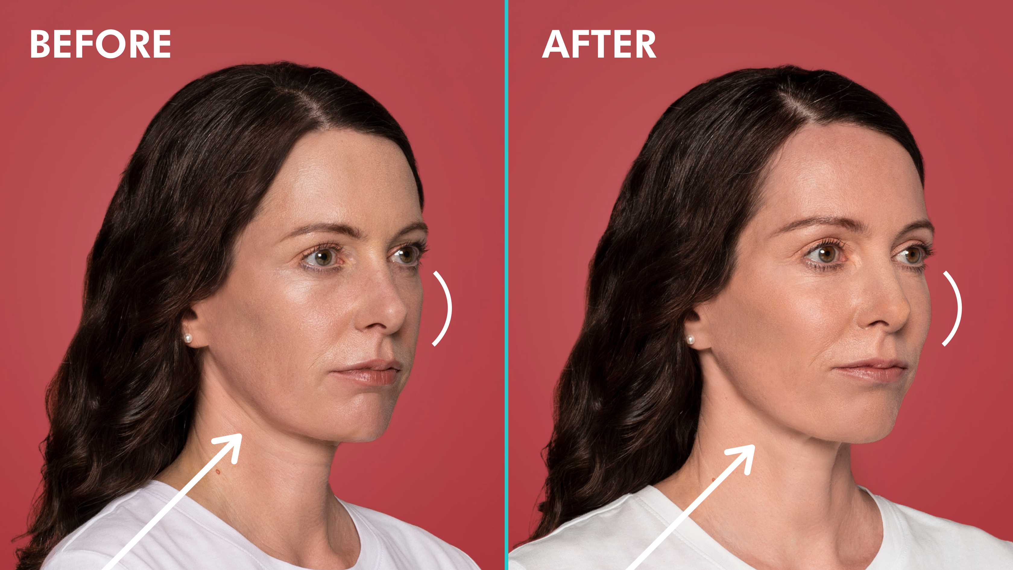 Before & After Restylane Contour